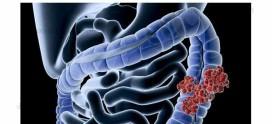 درمان سرطان روده بزرگ