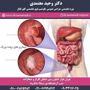 بیماری های روده بزرگ